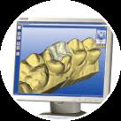 iTero® digital impressions