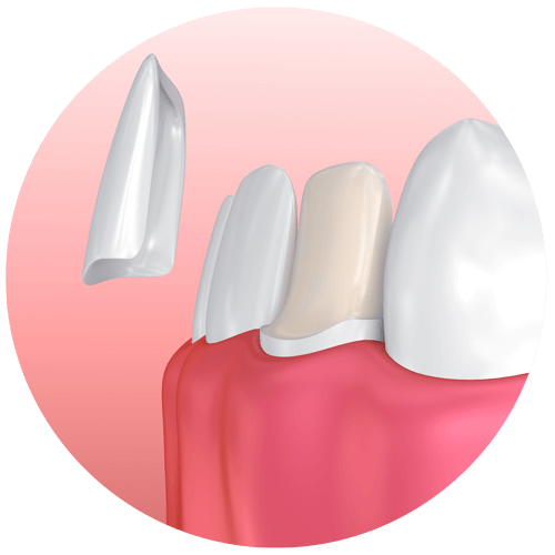 an illustration of a dental veneer being placed over a prepared tooth