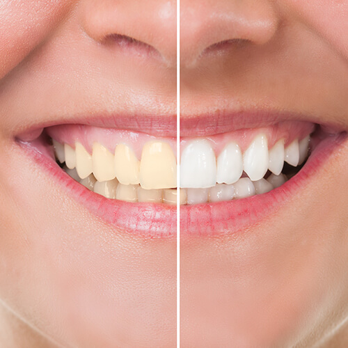 divided image showing unwhitened and whitened teeth