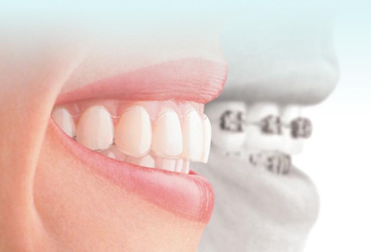 braces smile after