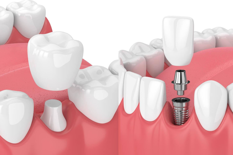 Single Dental Implant Vs. A Single Dental Crown To Fix A Tooth