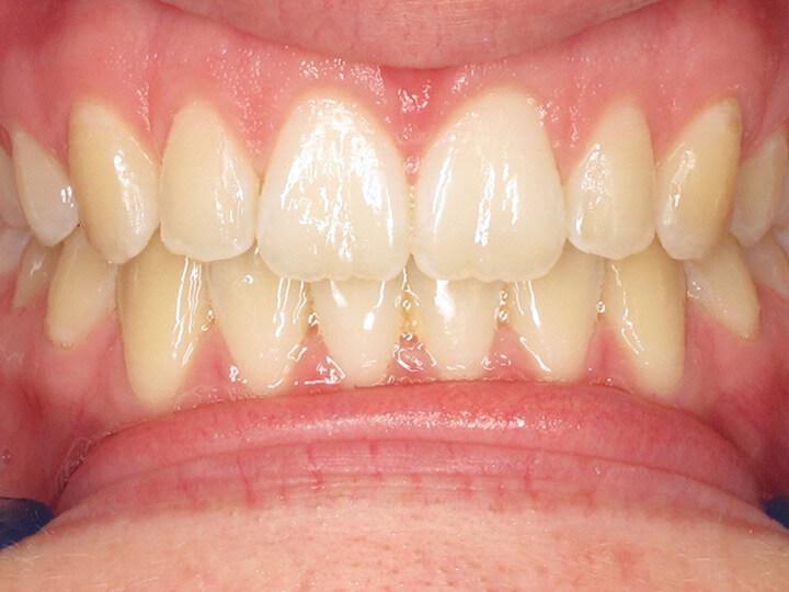 Close Teeth